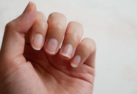 Mano con unghie indebolite.