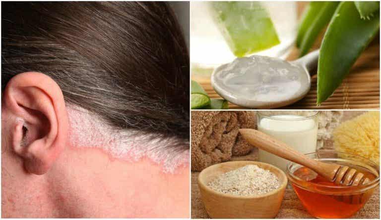 Psoriasi del cuoio capelluto: 5 rimedi naturali