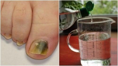 Micosi alle unghie: ricetta a base di alcol per combatterla