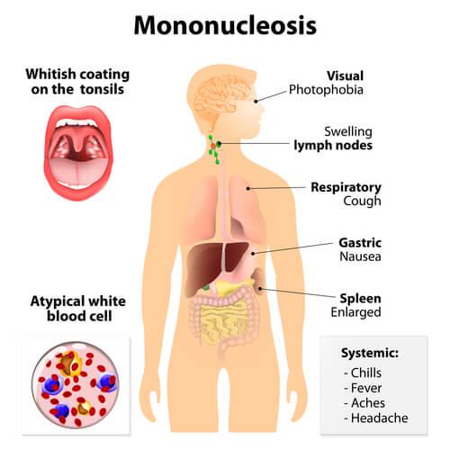 Sintomi della mononucleosi