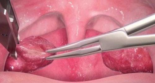 Estrazione delle tonsille