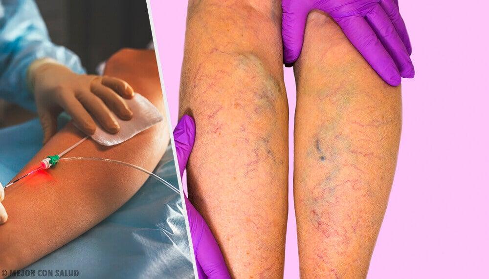 Vene varicose: sintomi, cause, diagnosi e terapia