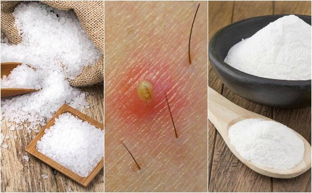 Eliminare i peli incarniti: 5 rimedi naturali