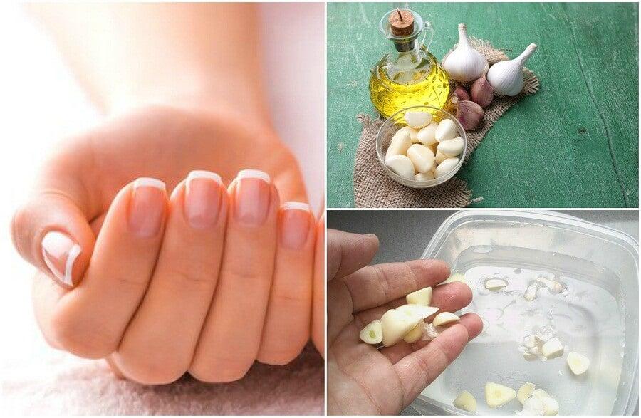 Accelerare la crescita delle unghie: 5 trattamenti naturali
