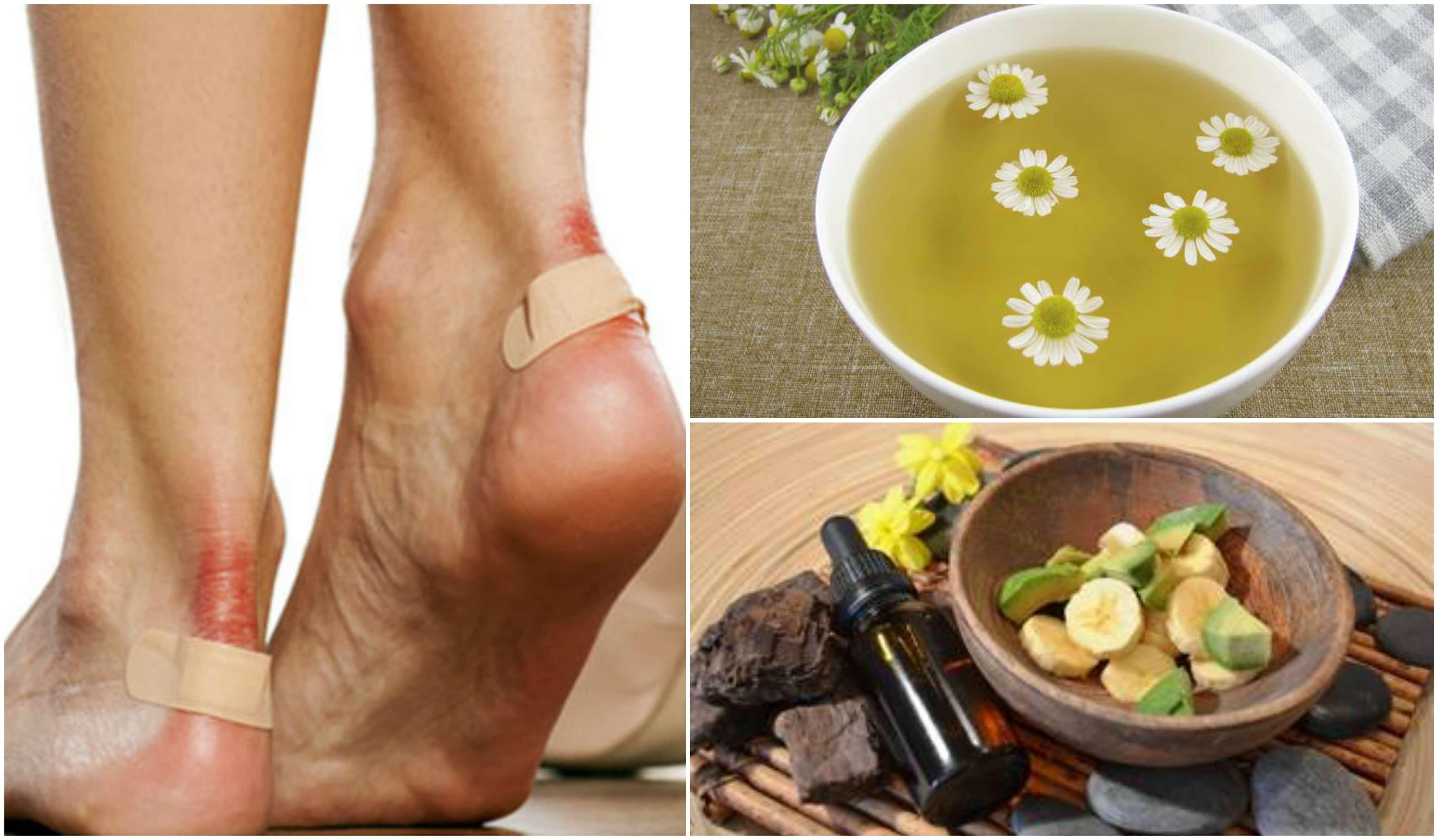 Lesioni ai piedi: 5 soluzioni naturali