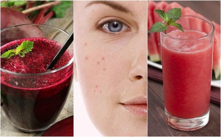 Acne sul viso: combatterla con 5 frullati detox