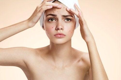 Maschera contro l'acne
