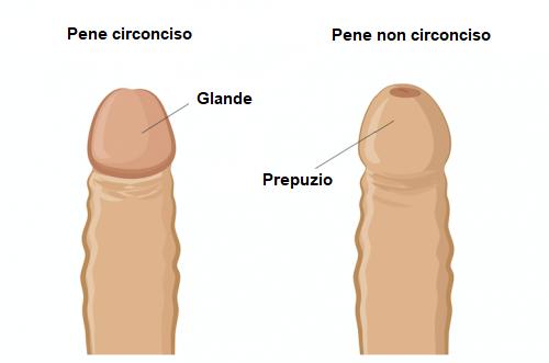 Pene circonciso