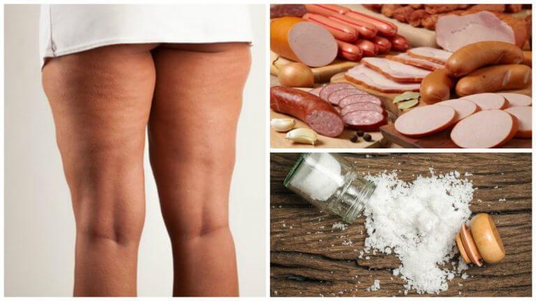 Combattere la cellulite: 7 alimenti da evitare
