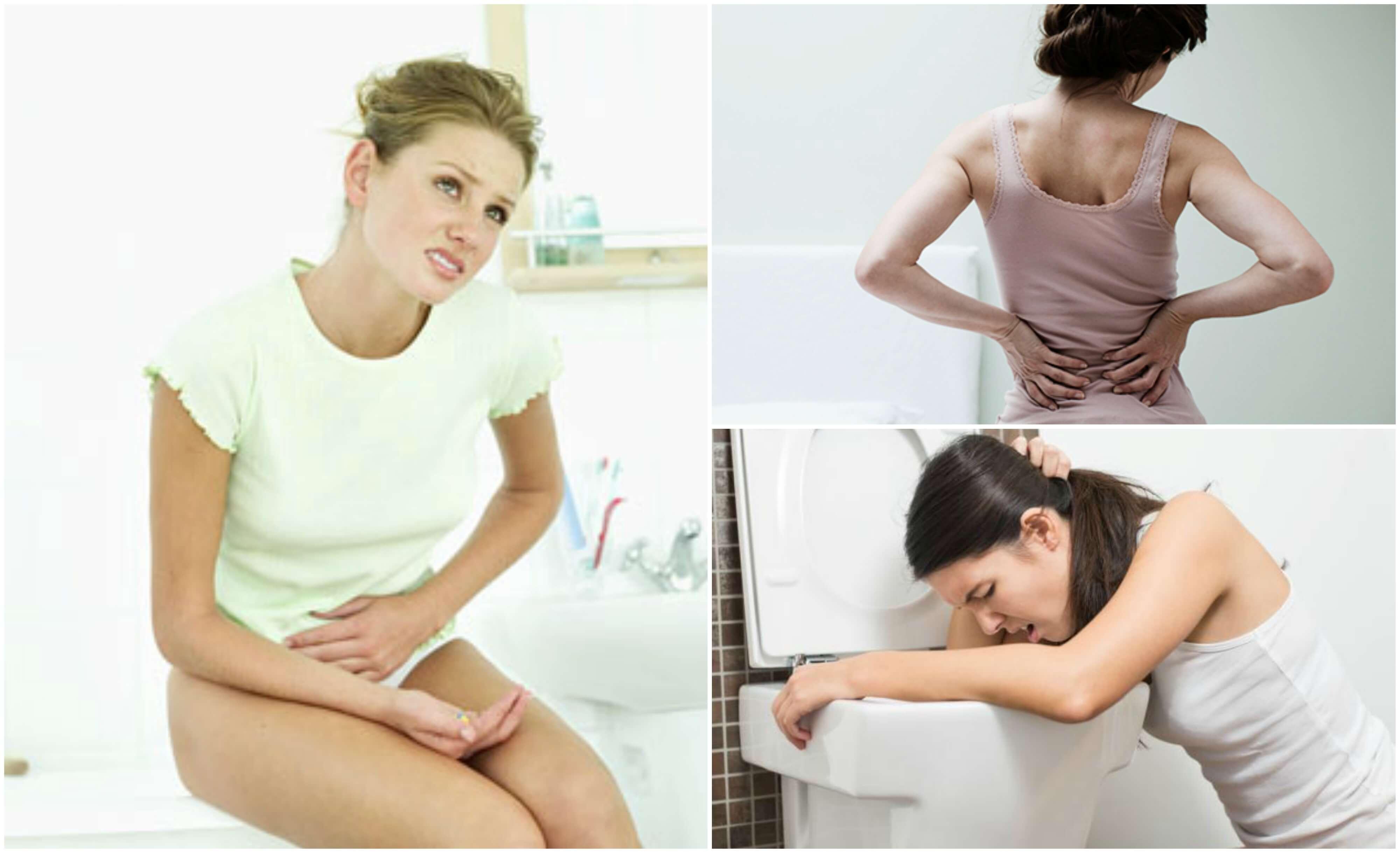 I calcoli renali: 8 sintomi per riconoscerli