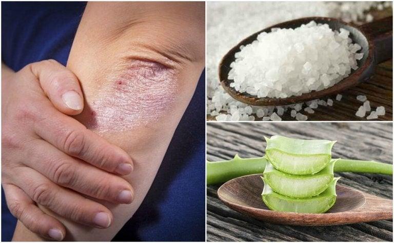 Micosi della pelle: 5 soluzioni naturali