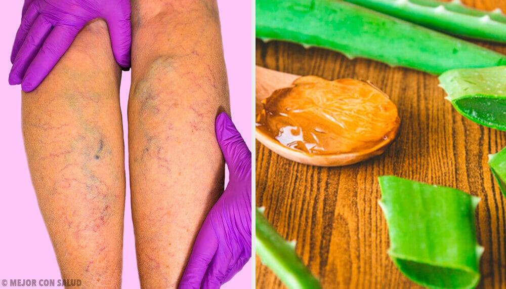 Curare le vene varicose con un rimedio all'aloe vera