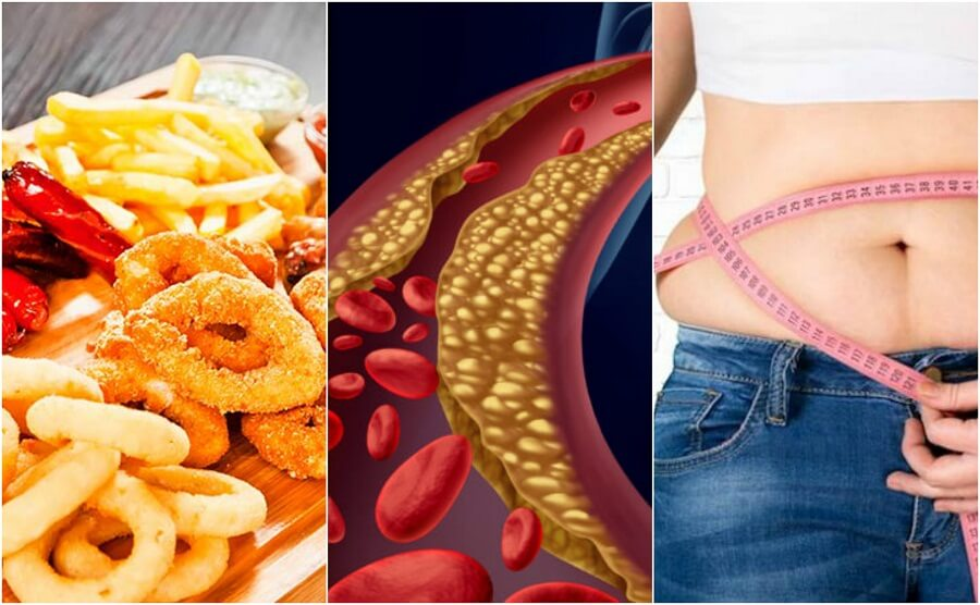 Aumento del colesterolo: come evitarlo