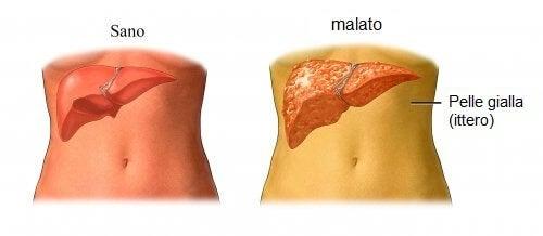 Curare colesterolo in modo naturale