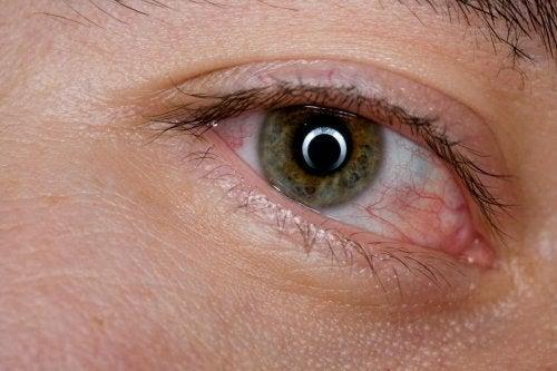 Malattie degli occhi