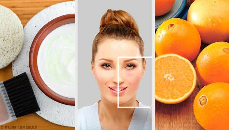 Eliminare le macchie della pelle con metodi naturali