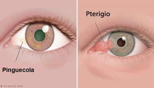 Malattie degli occhi: pinguecola e pterigio