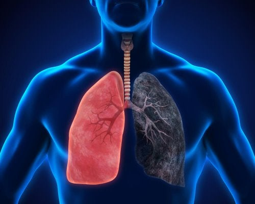 Polmonite: 8 sintomi da non ignorare