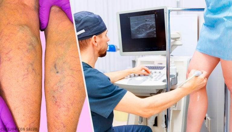 Prevenire e trattare le varici: trattamenti topici e orali