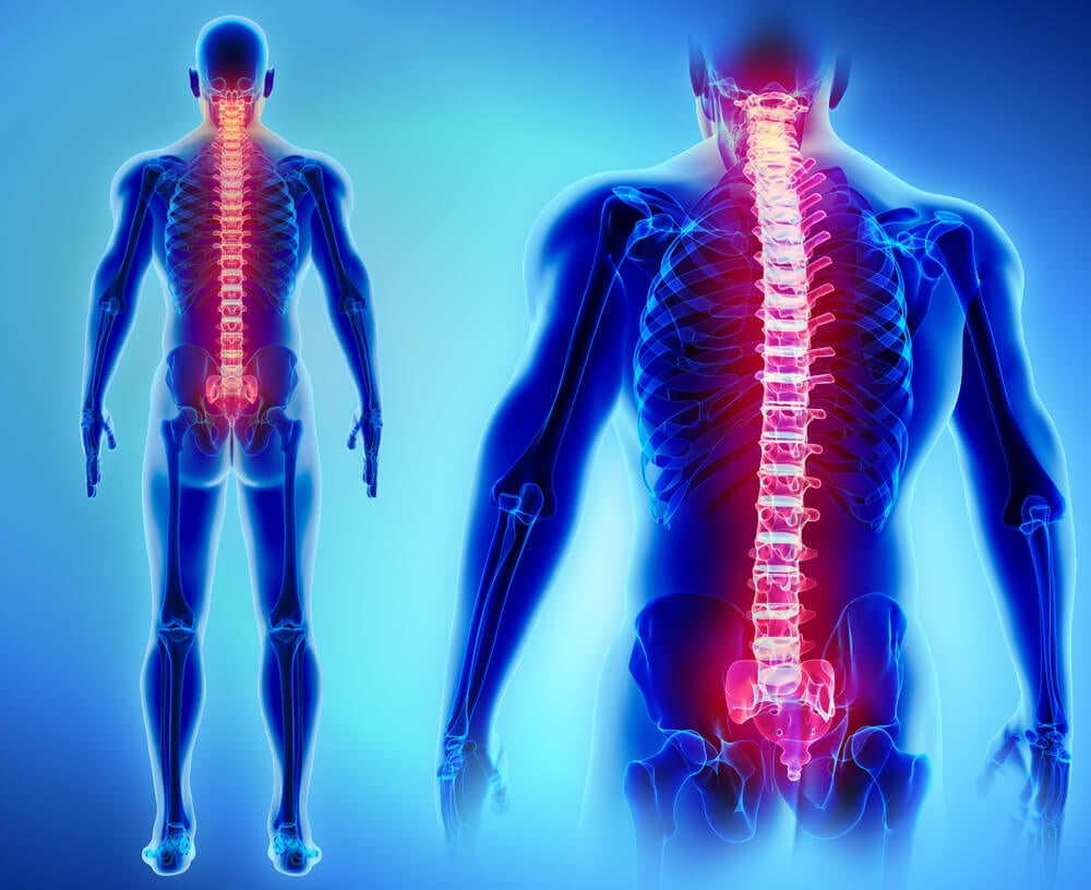 6 possibili cause del mal di schiena - Vivere più sani