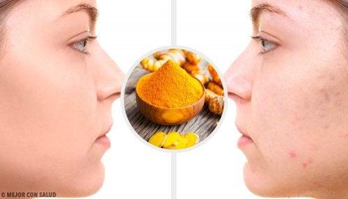 Eliminare le cicatrici da acne con 5 maschere alla curcuma