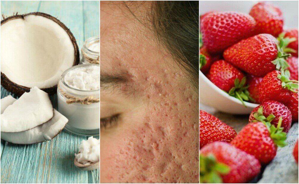Attenuare le cicatrici dell'acne con trattamenti naturali