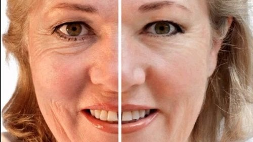 viso di donna prima e dopo alimentazione corretta