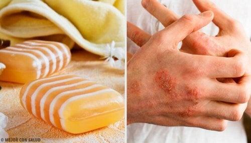 Sapone per la dermatite con propoli e argilla