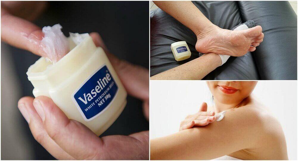 Usi curativi della vaselina da conoscere