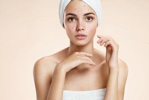 Bicarbonato e miele contro l'acne