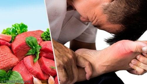 Urici dieta acidi alti