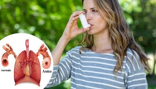 Asma: cause, sintomi e diagnosi