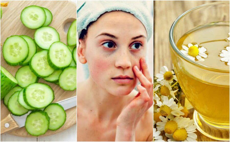 Ridurre borse e occhiaie: 5 ingredienti naturali