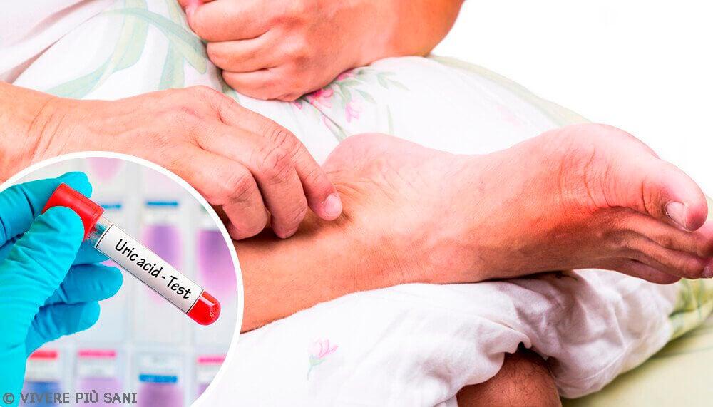 Alti livelli di acido urico: cause principali