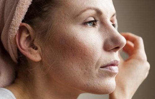 Donna con acne