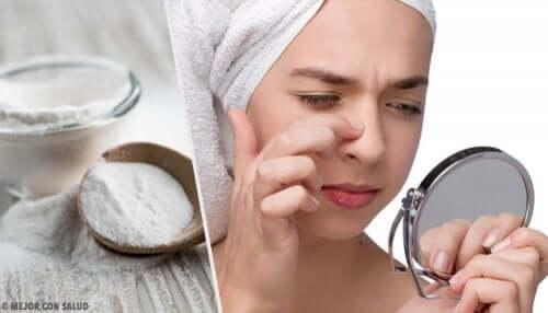 Eliminare i punti neri con 4 maschere al bicarbonato di sodio