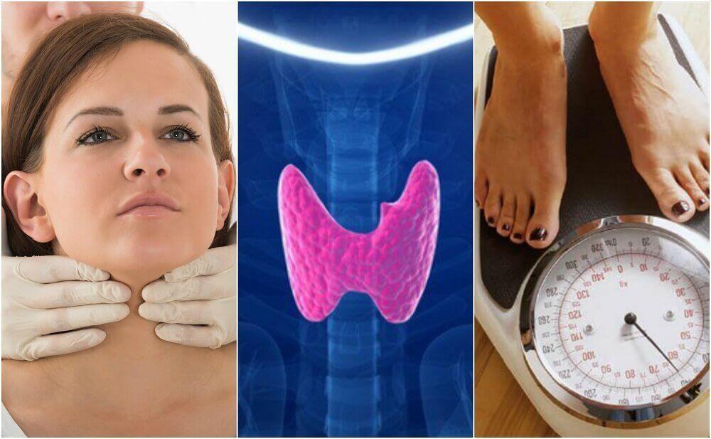 Riconoscere l'ipotiroidismo: 10 sintomi