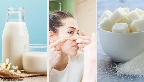 Eliminare le impurità della pelle: 4 maschere