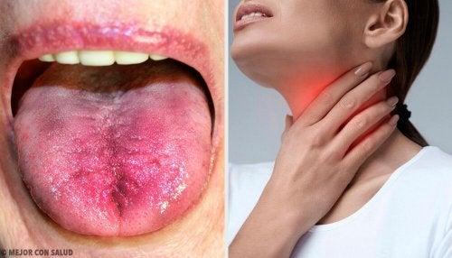 Placche in gola: 6 modi per riconoscerle