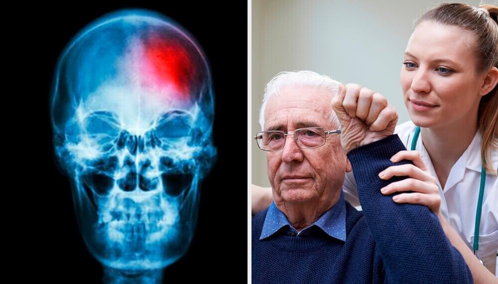 Mini-ictus cerebrale: cos'è e come riconoscerlo