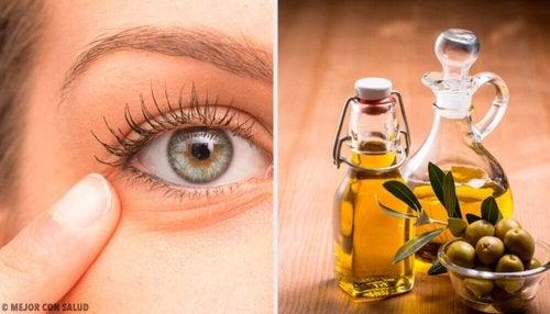 Infiammazione agli occhi: 6 rimedi naturali