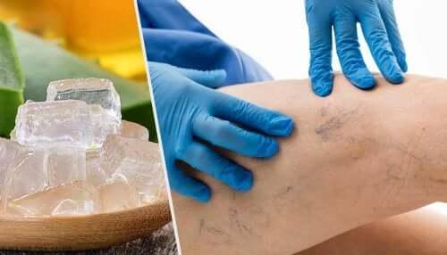 Alternative per trattare le varici: 5 proposte