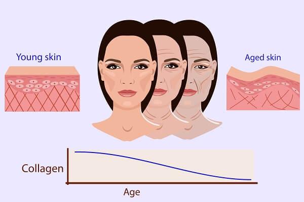 lassunzione di collagene serve per perdere peso
