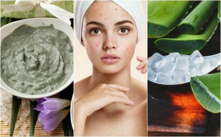 5 trattamenti naturali per i brufoli del viso