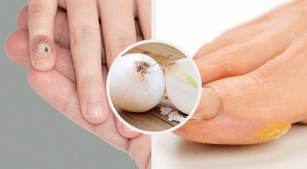 Togliere i calli da mani e piedi in modo naturale
