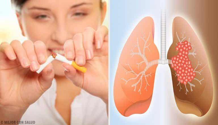 Cancro ai polmoni