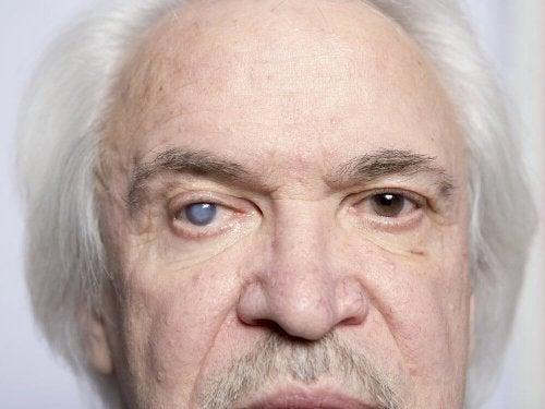 Uomo anziano con cataratta ad un occhio