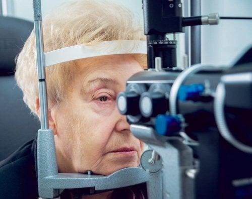 Donna anziana con cataratta
