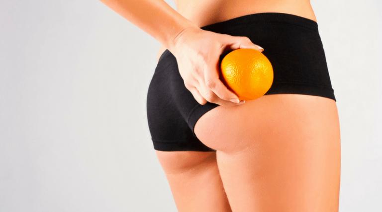 Ridurre la cellulite con 7 rimedi naturali