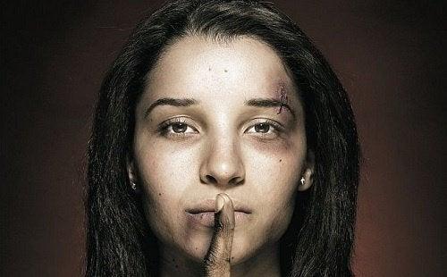 Donna con cicatrici che fa segno di stare in silenzio